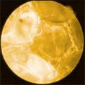 Nichtnewtonsche schäumende Flüssigkeit unter dem Mikroskop
